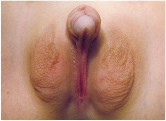 операция большие малые половие губы