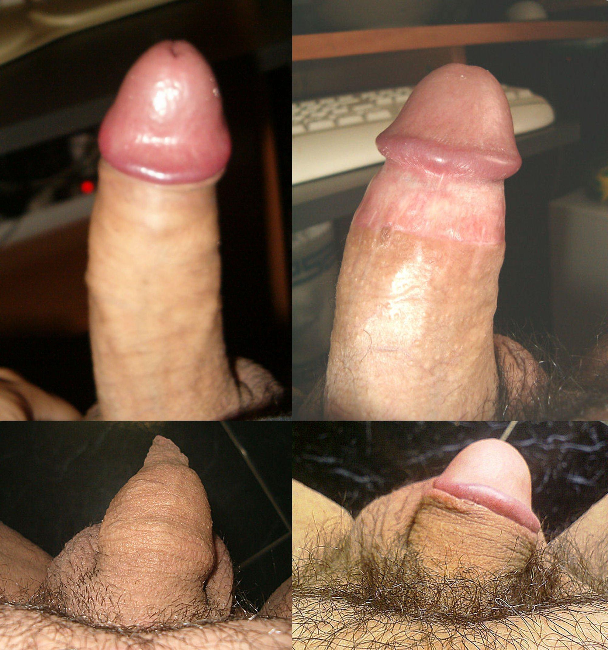 Фото обрезанных хуев порно 3 фотография