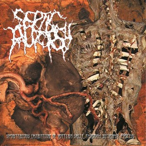Septic Autopsy – Spontaneous Emanation Of Rotting Smell Through Necropsy Process (2016)