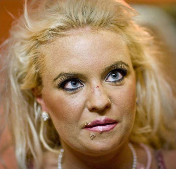 Ofiary operacji plastycznych: Johanna Tukiainen 15