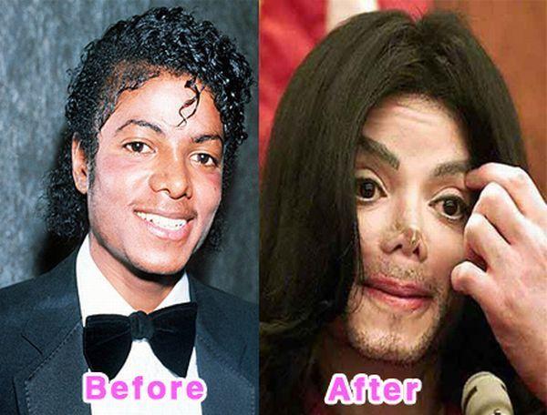 Gwiazdy przed i po operacjach plastycznych 16