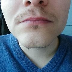 Schwacher Bartwuchs - soll ich Experiment Bart abbrechen