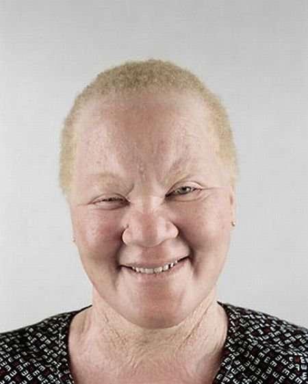 Czarnoskóry albinos !?! 2