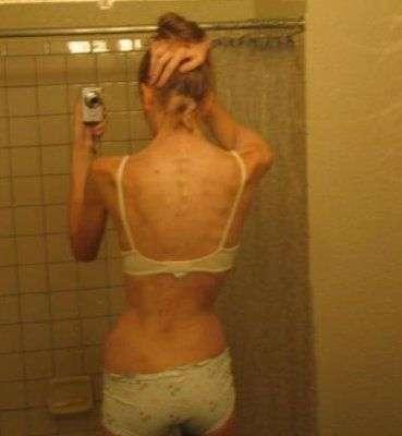 Anorektyczki #2 36