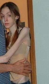 Anorektyczki #2 2