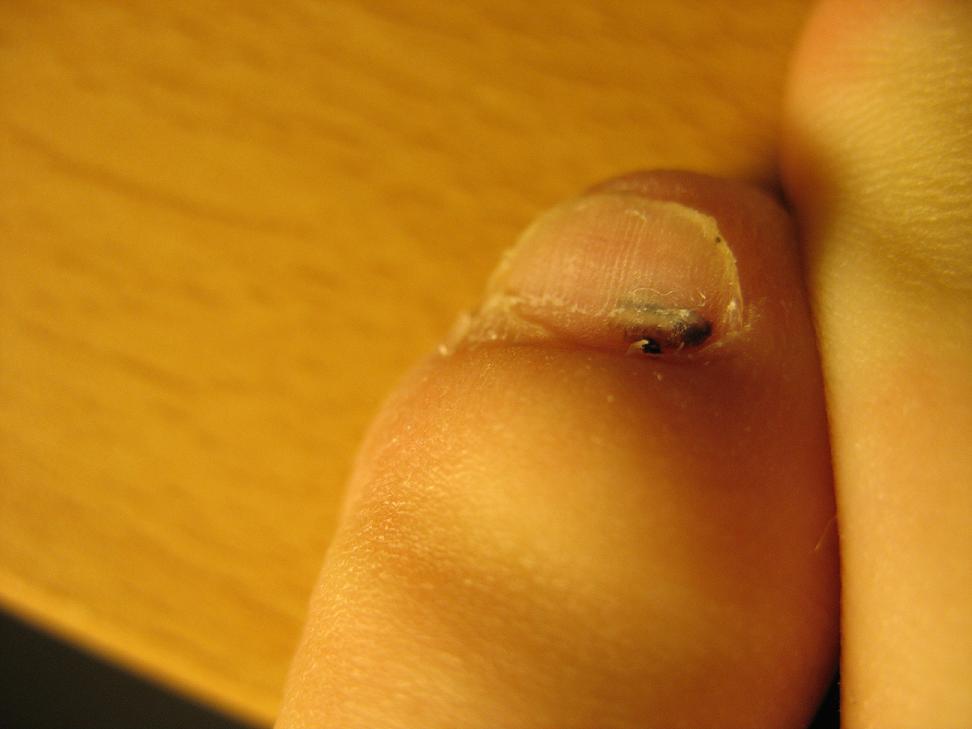 Zehennagel unterm schwarzer fleck Schwarzer Zehennagel:
