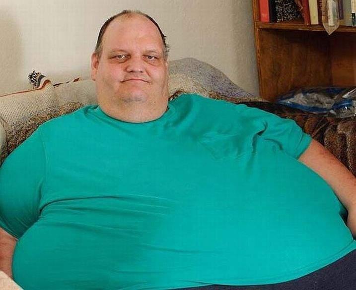Patrick Dyuel - jeden z najgrubszych ludzi świata 5