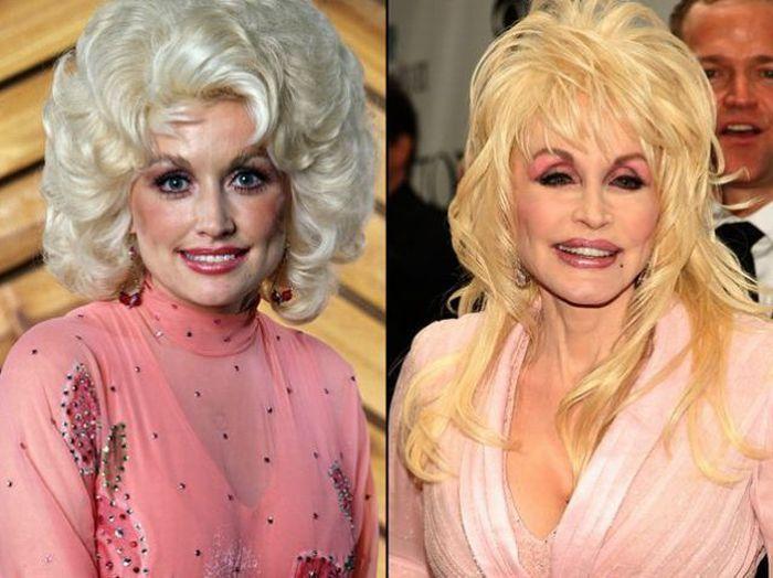 Gwiazdy przed i po operacjach plastycznych 13