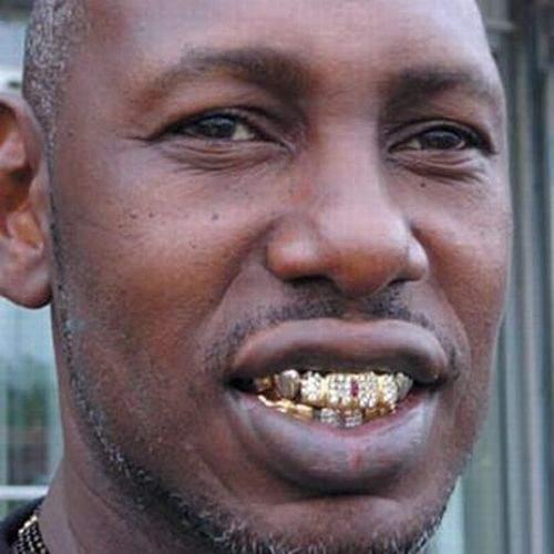 Biżuteria na zębach 25