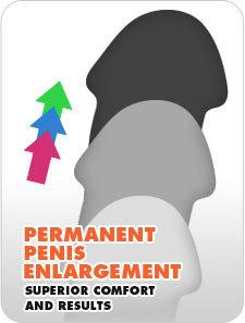 Permanent penis elargement Übung