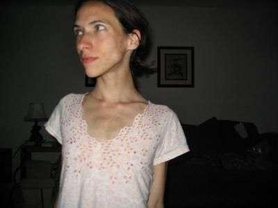 Anorektyczki #2 7