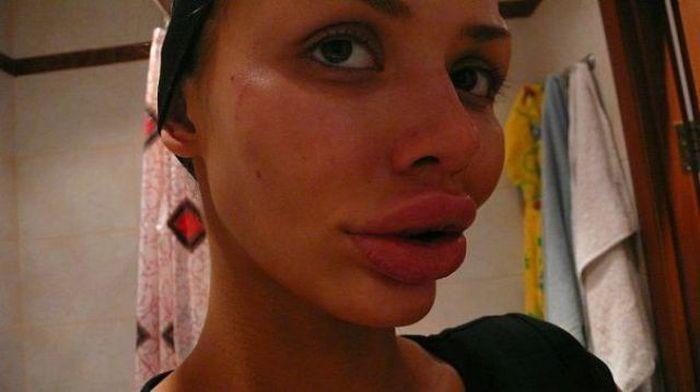 Silikonowe usta 26
