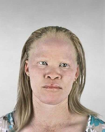 Czarnoskóry albinos !?! 10