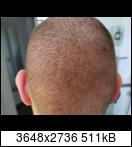 http://abload.de/thumb/tag105ackry.jpg