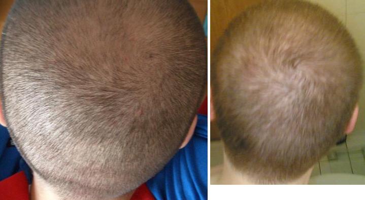 Was Tun Wenn Einem Die Glatze Bzw Kurzhaarschnitt Nicht Steht