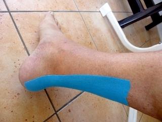 Was Hilft Bei Achillessehnenentzündung